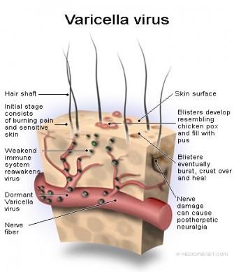 varicella-bambini-virus
